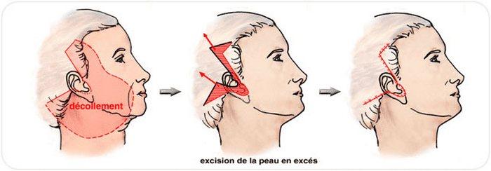 Lifting cervico-facial en Tunisie et tarif