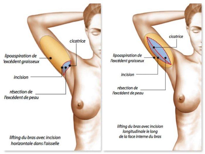 prix chirurgie esthetique bras Tunisie