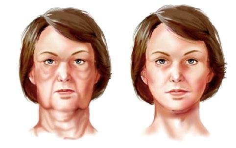 lifting visage: redrapage