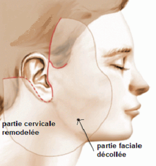lifting cervico-facial Tunisie : technique