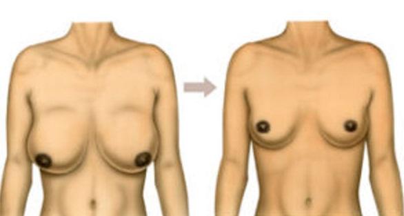 lifting seins : correction ptose mammaire