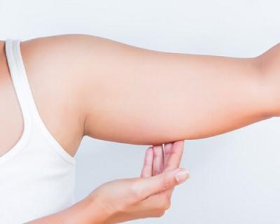 enflure après brachioplastie lifting bras